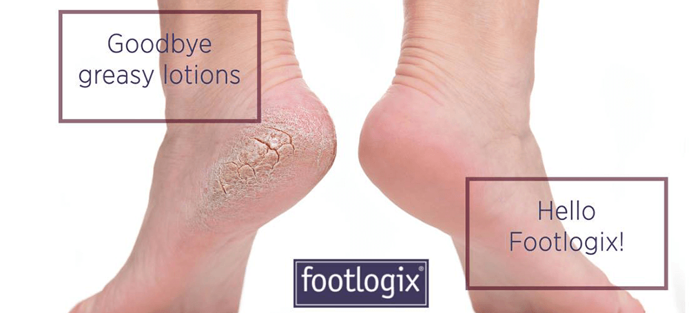 all_about_footlogix